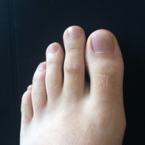 Photo_of_Morton's_Toe